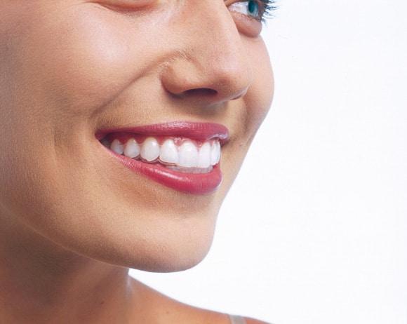 La sonrisa que buscas con Invisalign®