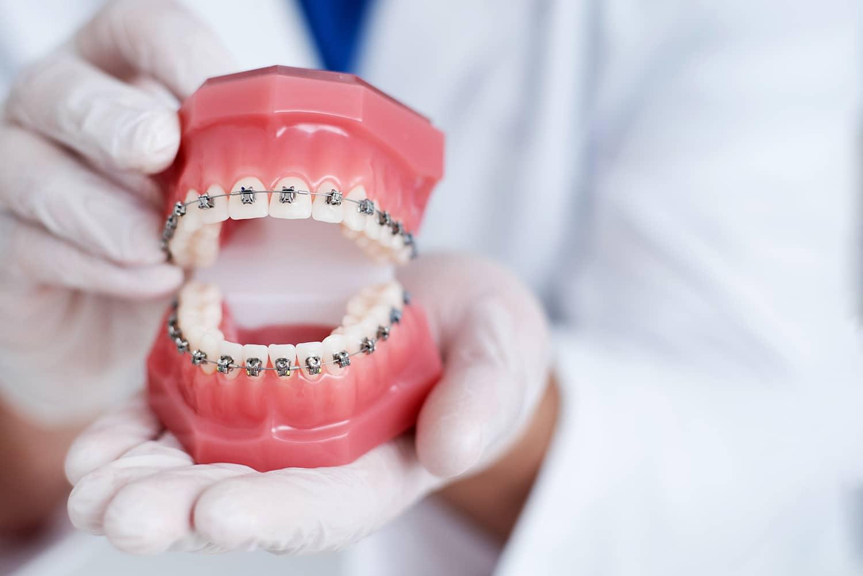 Siempre es preciso extraer algunos dientes