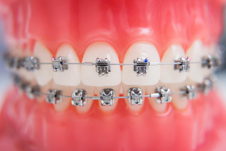 Preguntas frecuentes sobre Ortodoncia
