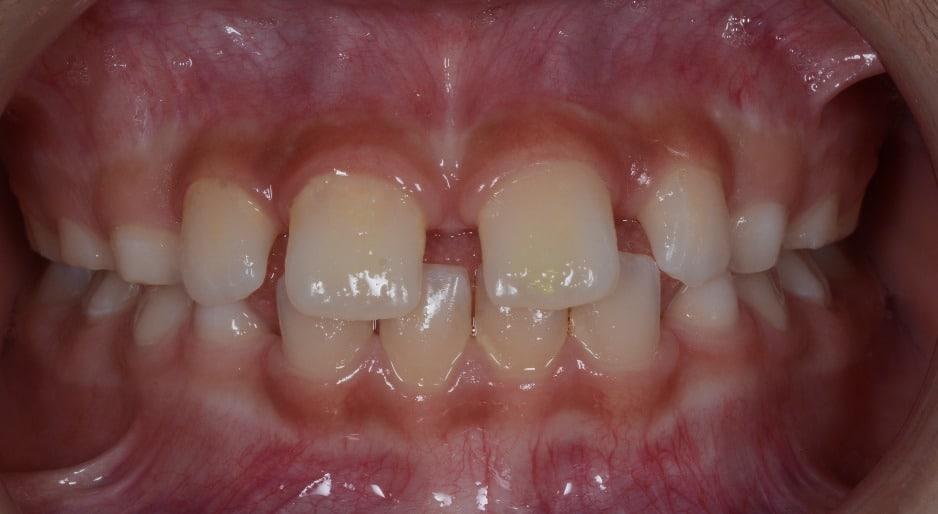Diastemas o espacios entre los dientes