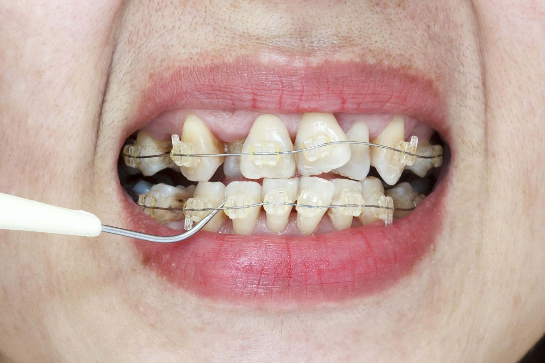 Clasificación del Apiñamiento Dental