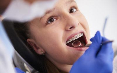 ¿Cómo se hace y qué debo esperar de una limpieza dental?